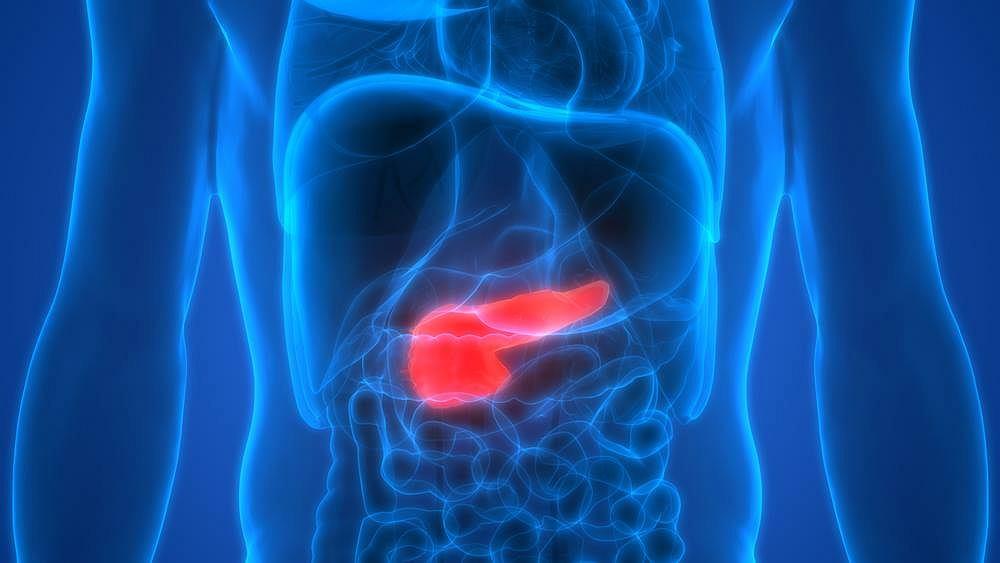 W ponad 90 procentach przypadków insulinoma umiejscawia się w trzustce