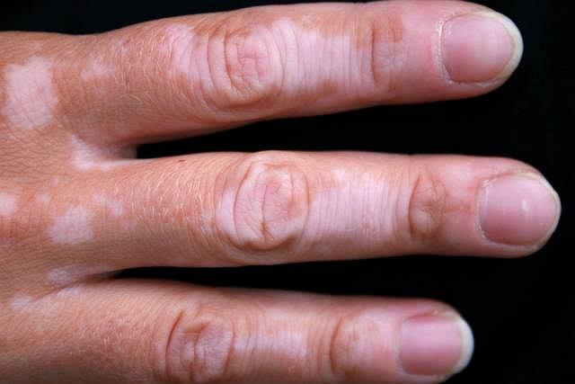 Łupież pstry, czyli drobne, różowobrunatne plamki na skórze widoczne są przede wszystkim na mocno opalonej skórze