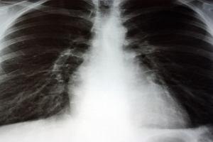 RTG klatki piersiowej - cena, opis, przygotowanie