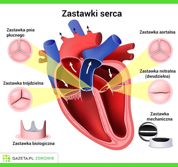 Zastawki serca: wady zastawek serca i leczenie