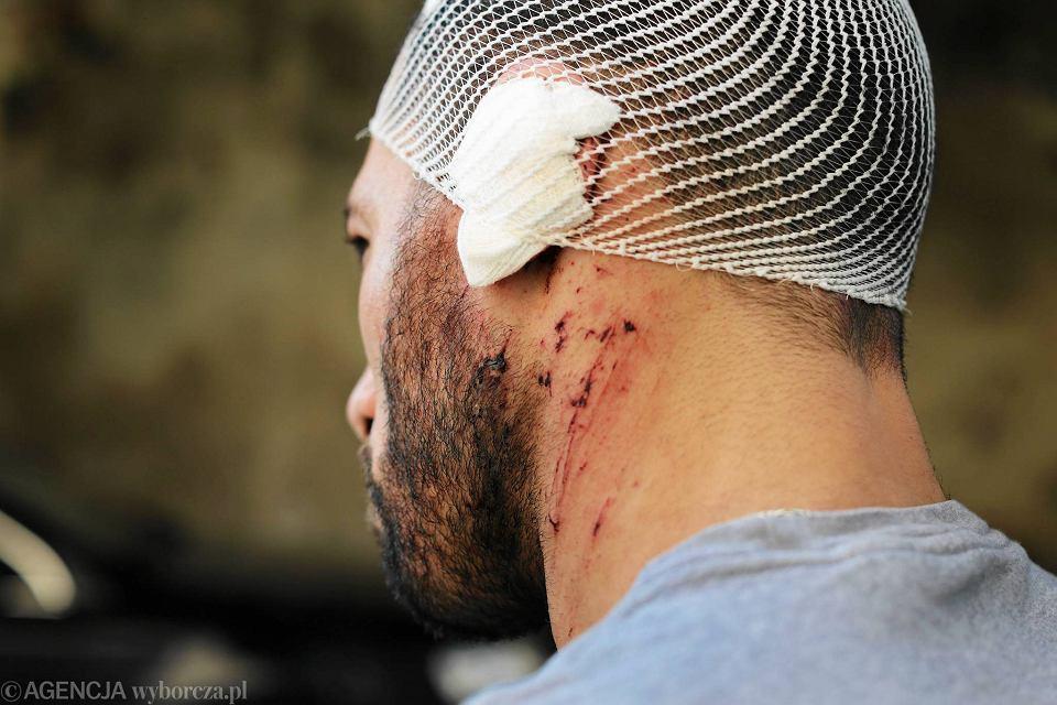 Ahmed, zaatakowany pracownik lokalu z kebabem przy ul Floriańskiej