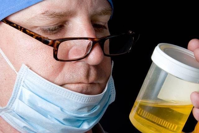 Kamicę szczawianową można potwierdzić w oparciu o badanie moczu