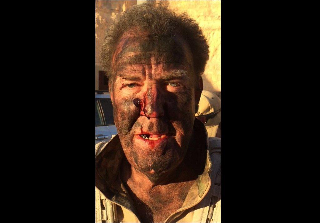 Poobijany Jeremy Clarkson