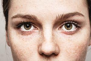 Opadająca powieka - przyczyny i korekcja