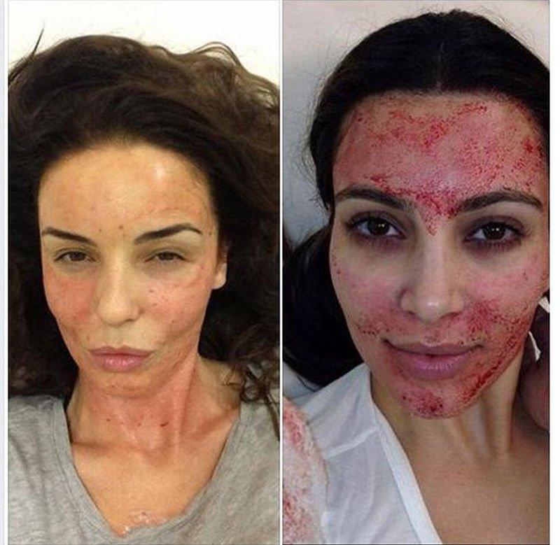Zdjęcie numer 3 w galerii - Sandra Bullock używa kremu na hemoroidy na twarz. A Victoria Beckham? Nie uwierzycie. Tak gwiazdy dbają o urodę