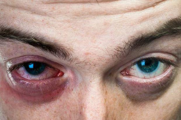 Zapalenie woreczka łzowego i zwężenie dróg łzowych