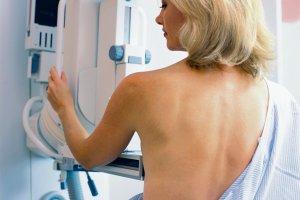 Rak piersi, prostaty, p�uca, jelita, macicy. Wszystko, co powiniene� wiedzie� o leczeniu raka