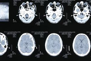 Nadczynność przysadki mózgowej