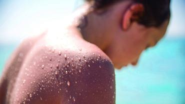 Rodzice często lekceważą oparzenia słoneczne. Wydaje im się, że to coś powszechnego i niegroźnego.