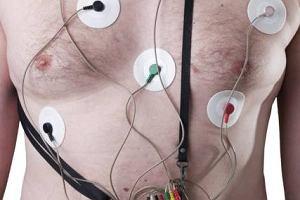 Badanie holterowskie (metodą Holtera)