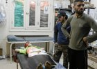 Wymarzony prezent na 13. urodziny ma�ego Syryjczyka? Proteza z prawej r�ki manekina