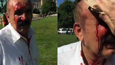 Zamieszki przed ambasadą Turcji w Waszyngtonie