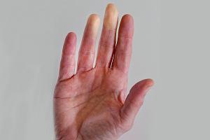 Objaw Raynauda - palce dłoni i stóp stają się zimne i bez czucia