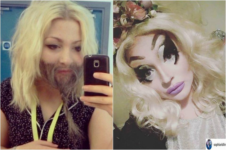 Zdjęcie numer 1 w galerii - Przez kompleksy ukrywała łuszczycę pod makijażem. Kiedy w końcu pokazała twarz, poczuła się wyzwolona. Różnica? Ogromna