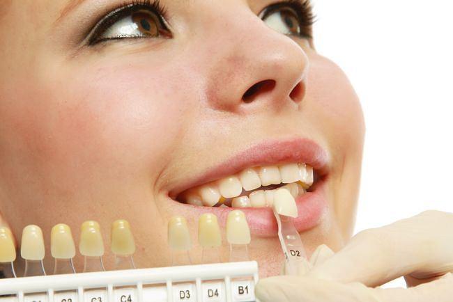 higiena jamy ustnej - kolor zębów