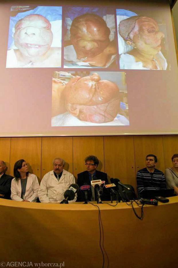Drugi przeszczep twarzy w Polsce. Stan pacjentki ci�ki, ale stabilny
