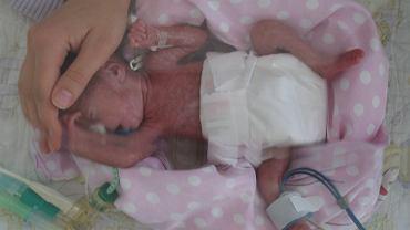 Wiktoria urodziła się w 23 tygodniu ciąży, ważyła 590 gramów. Pierwsze pół roku życia spędziła w szpitalu. Dzisiaj dziewczynka ma 8 lat.