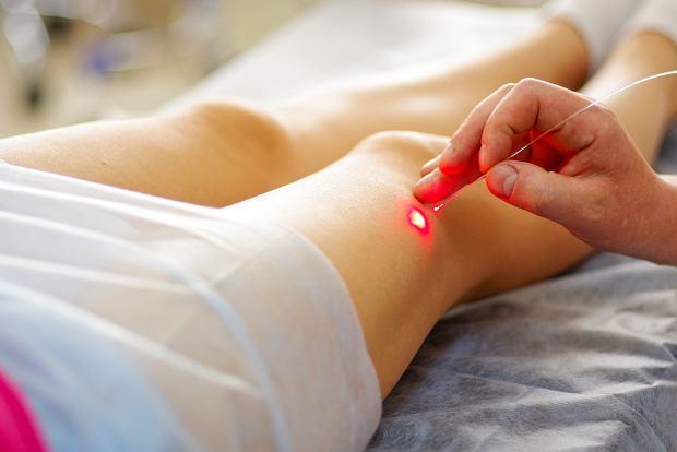 Laserowe zamykanie naczynek - wszystko co musisz wiedzieć o zabiegu