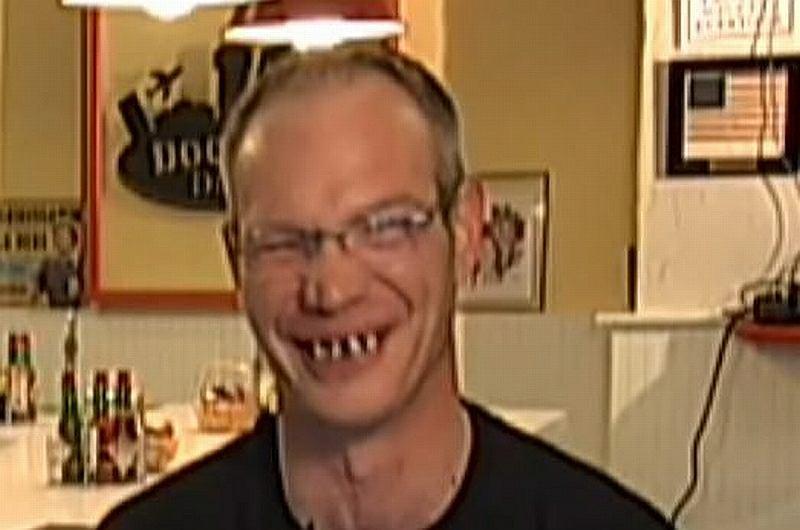 Miał niemal czarne zęby
