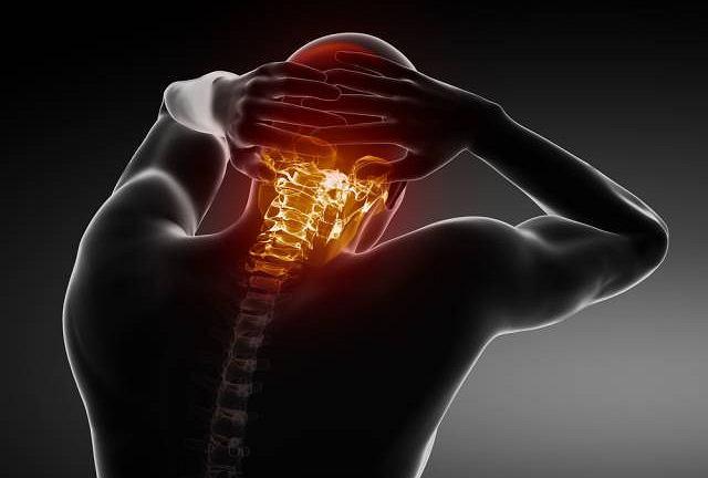 Kifoza to zwyrodnienie kręgosłupa, potocznie nazywane