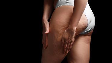 Cellulit jest uwarunkowany również genetycznie