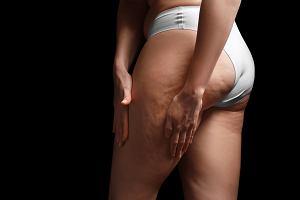 Cellulit - jak powstaje, jak się go pozbyć