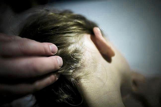 Kontrola włosów