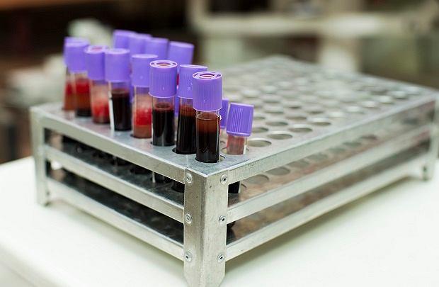 Anemia: objawy, przyczyny i leczenie. Co to jest anemia?