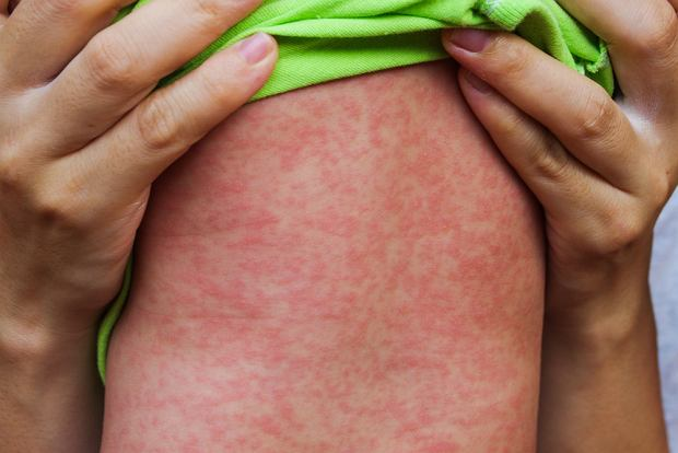 Groźna choroba zakaźna dotarła do Polski. Dziś ruszają darmowe szczepienia dla zagrożonego rejonu