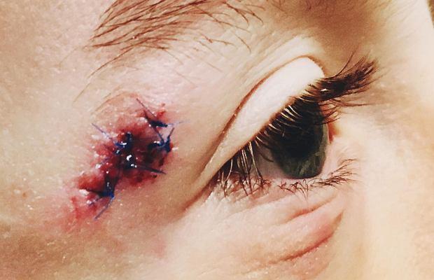 Rany - ich rodzaje oraz sposoby leczenia