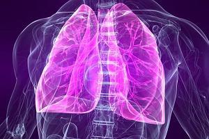 Idiopatyczne włóknienie płuc