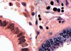 Mi�sak mieloblastyczny