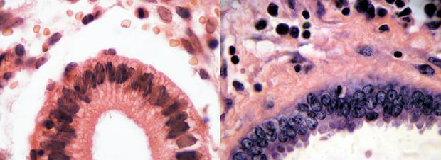 Mięsak mieloblastyczny