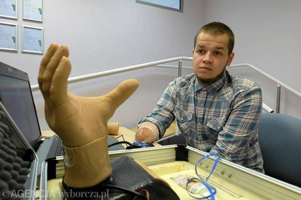 Подросток из Украины потерял руку, работая в Польше, а получил от работодателя всего 84 злотых