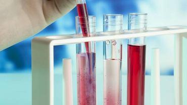 Oznaczenie poziomu białka całkowitego wykorzystywane jest przy diagnozowaniu chorób układu pokarmowego oraz tych, związanych z funkcjonowaniem nadnerczy