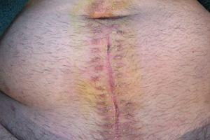 Perforacja (pęknięcie) wyrostka robaczkowego - zagrożenie życia