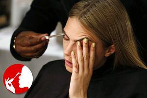 Worki pod oczami - geny, alergie, a mo�e wiek? Najcz�stsze przyczyny opuchlizny