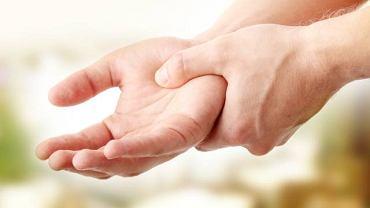 Łuszczycowe zapalenie stawów w pierwszej kolejności atakuje stawy w obrębie dłoni