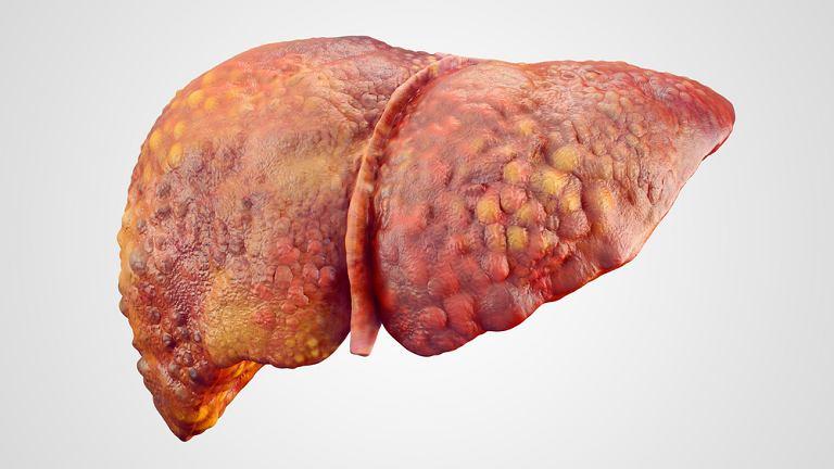 Marskość wątroby, nazywana też zwłóknieniem wątroby, to proces, którego nie da się zatrzymać, ale można go spowolnić