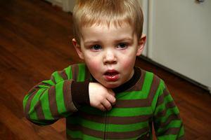 Guz Wilmsa - przyczyny, objawy, leczenie
