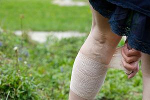 Obrz�k limfatyczny i zast�j limfy - przyczyny, objawy, leczenie