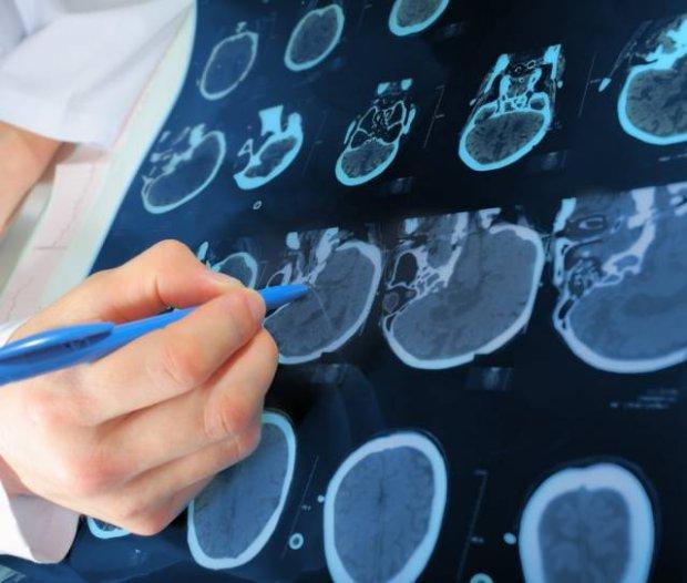 Dysplazja obojczykowo-czaszkowa