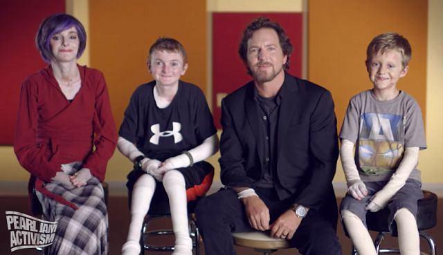 'Kiedy uświadomimy sobie, że EB atakuje nie tylko skórę, ale i narządy wewnętrzne, dociera do nas jak piekielna to choroba' - Eddie Vedder, wokalista Pearl Jam