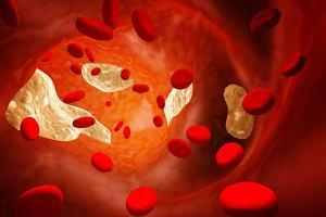 Hiperlipoproteinemia