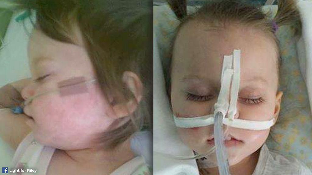 Jak groźną chorobą jest odra, przypomina tragiczna historia 3-letniej Nadji z Serbii.