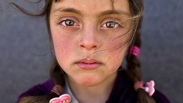 Zdjęcie roku UNICEF 2017. 5-letnia Zahara, która uciekła z rodziną z Syrii