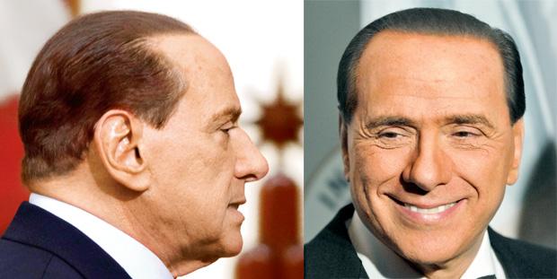wypadanie w�osów, piel�gnacja, w�osy, Przeszczepy w�osów, Silvio Berlusconi przed i po przeszczepie w�osów