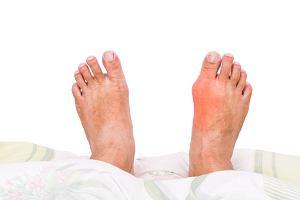 Podagra - przyczyny, objawy, pierwsza pomoc i leczenie