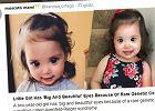 Zachwycają się, że dwulatka wygląda jak księżniczka Disneya, ale jej czarne oczy to efekt rzadkiej choroby genetycznej