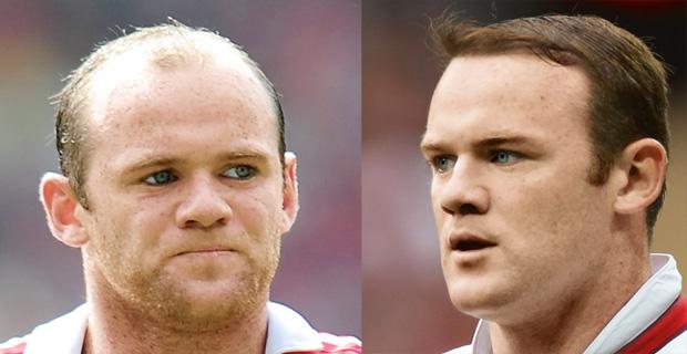 wypadanie w�osów, piel�gnacja, w�osy, Przeszczepy w�osów, Wayne Rooney przed i po przeszczepie w�osów